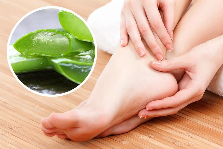 Cách dùng nha đam trị nứt gót chân